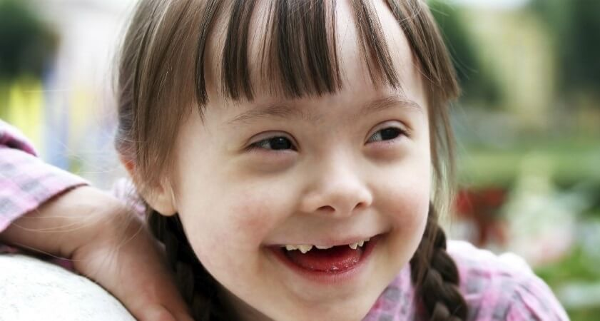 Zmarszczki nakątne u dzieci z zespołem Downa